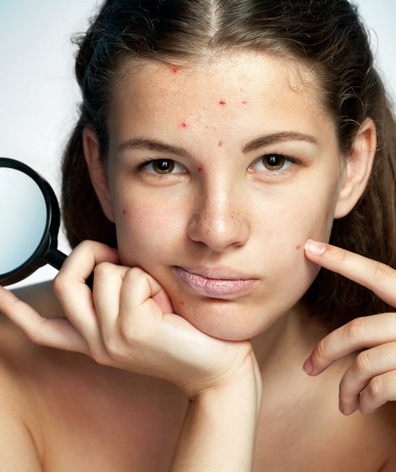 skin care for acne prone
